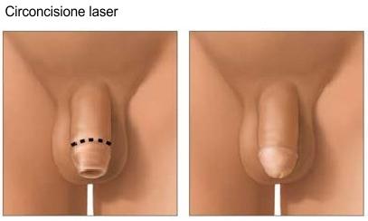 L' intervento di circoncisione rimuove il prepuzio del pene.