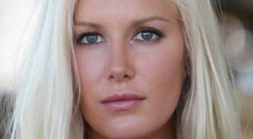 liposuzione Heidi Montag