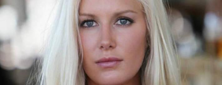 Liposuzione VIP: Heidi Montag