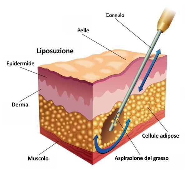 liposuzione - chirurgia estetica