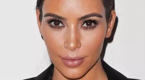 liposuzione Kim Kardashian