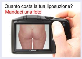 preventivo-liposuzione
