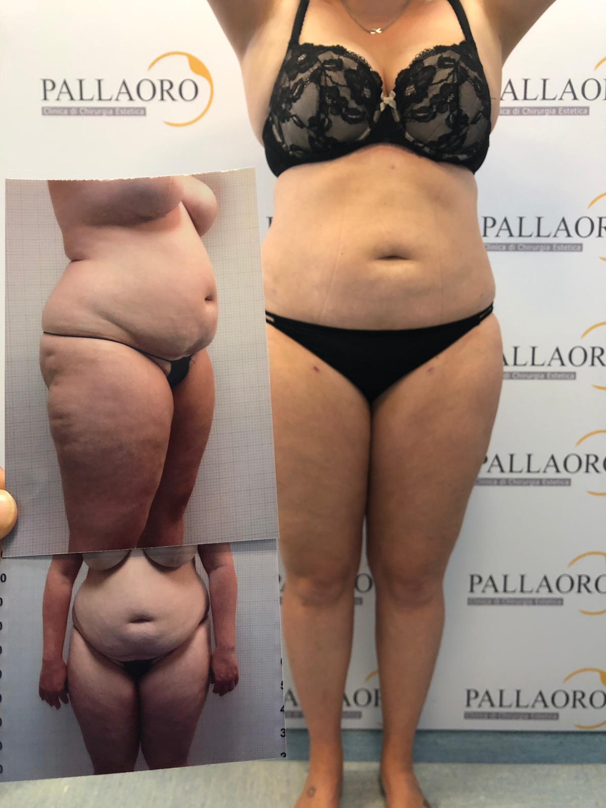 alexandre milosevic pallaoro liposuzione addominoplastica prima dopo